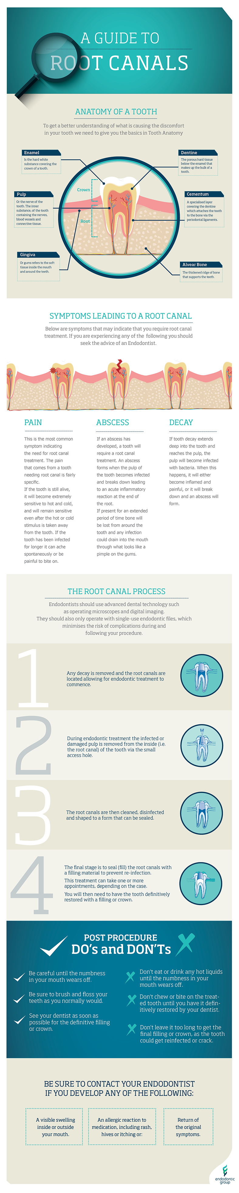A Guide to Root Canals