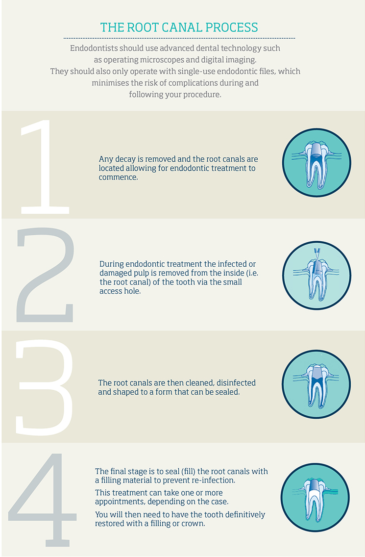 The Root Canal Process